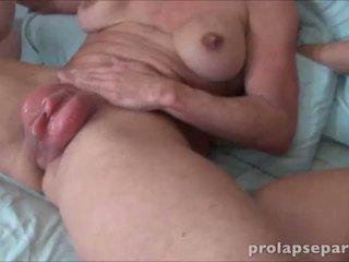 Anal Dilation porn